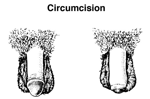 Sex with an uncircumcised man